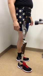 Custom American flag designed prosthetic