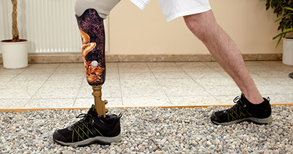 Man walking with Prosthetic Leg